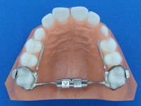 Palatal-Widening-Device